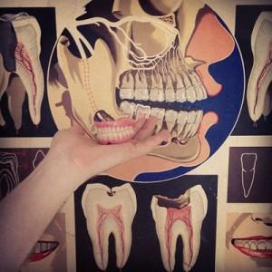tand utan sten och utan ben